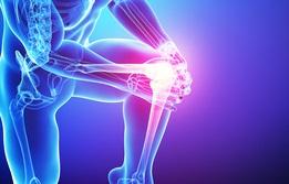 Inflamación rodilla