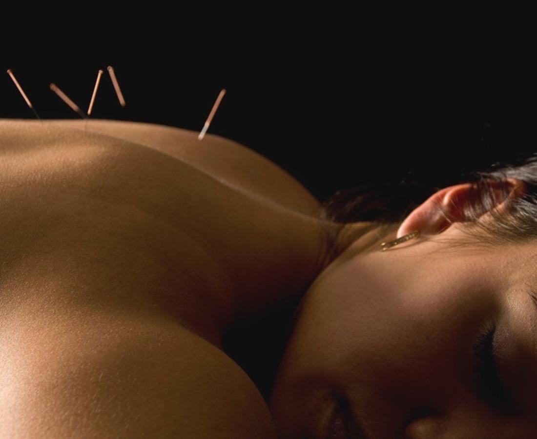 acupuntura Madrid centro